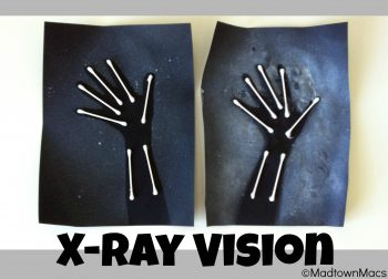 X-Ray Arms